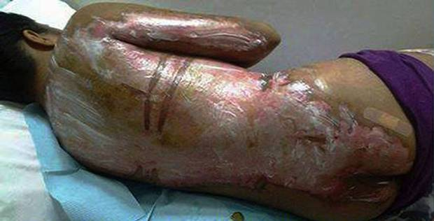 maid abused with boiling water
