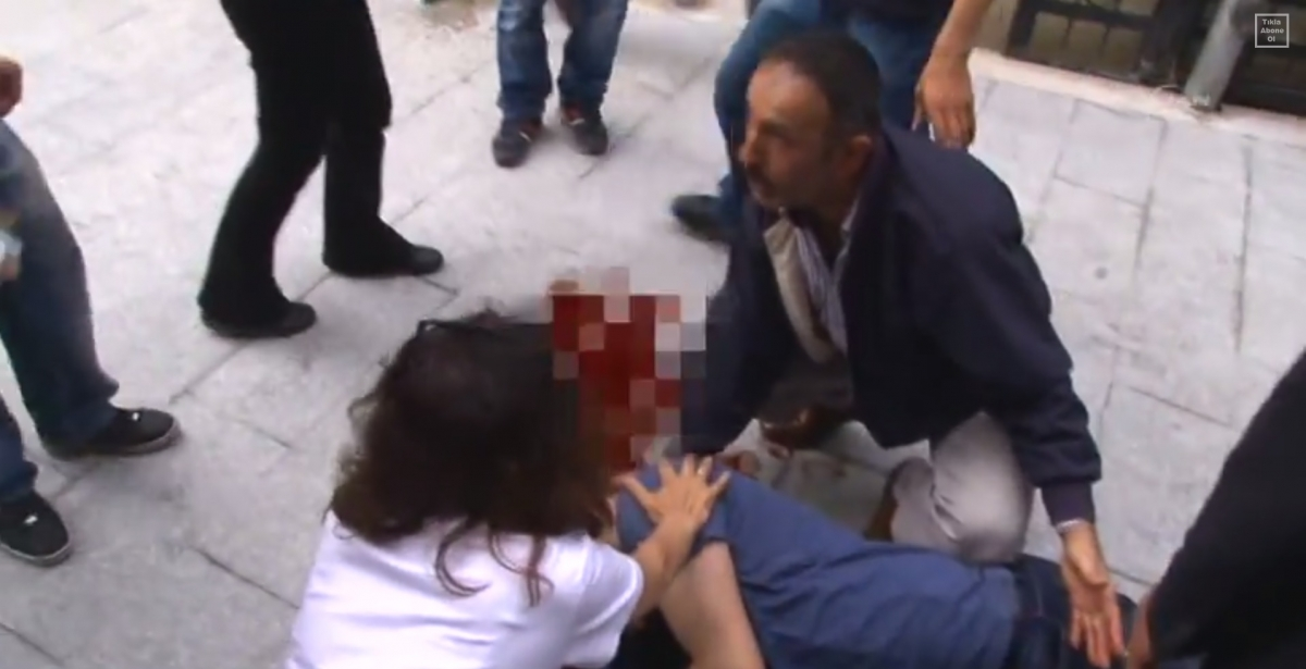 Protester wounded