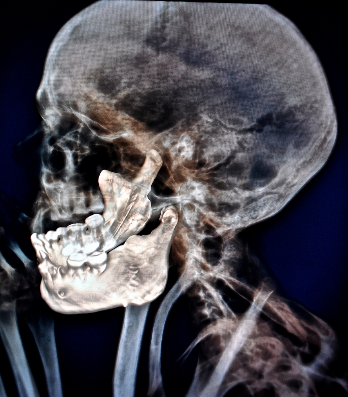 The CT scan reveals the state of dental decay in the mummy