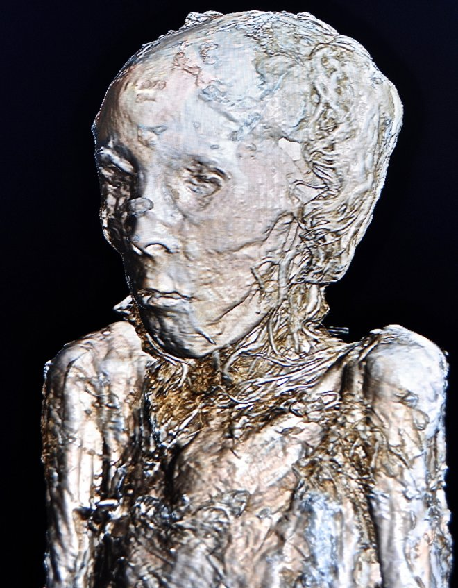 The hair and facial characteristics are revealed without having to unwrap the mummy