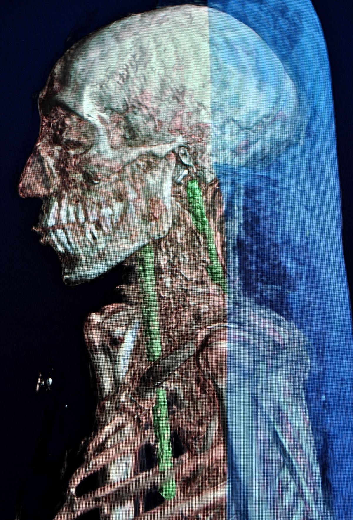 The CT scan shows ancient repairs of rods inserted into the skull to keep the head attached to the body