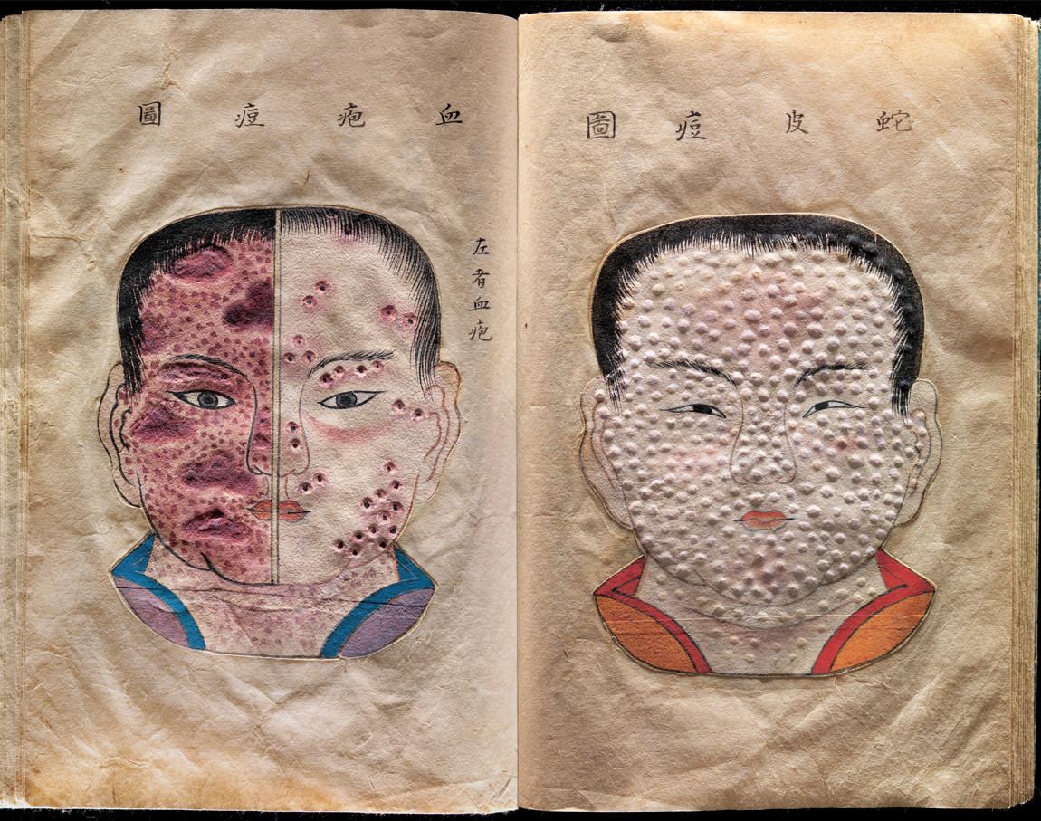 Sick Rose: 17th century Japanese treatise on smallpox
