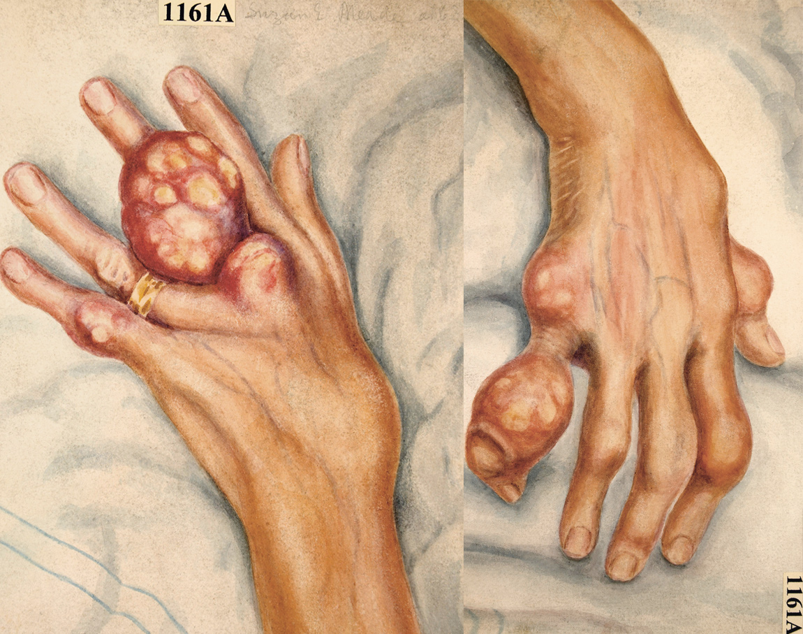 Sick Rose: Watercolour drawing of the hands of a sixty-three year old woman suffering from chronic gout