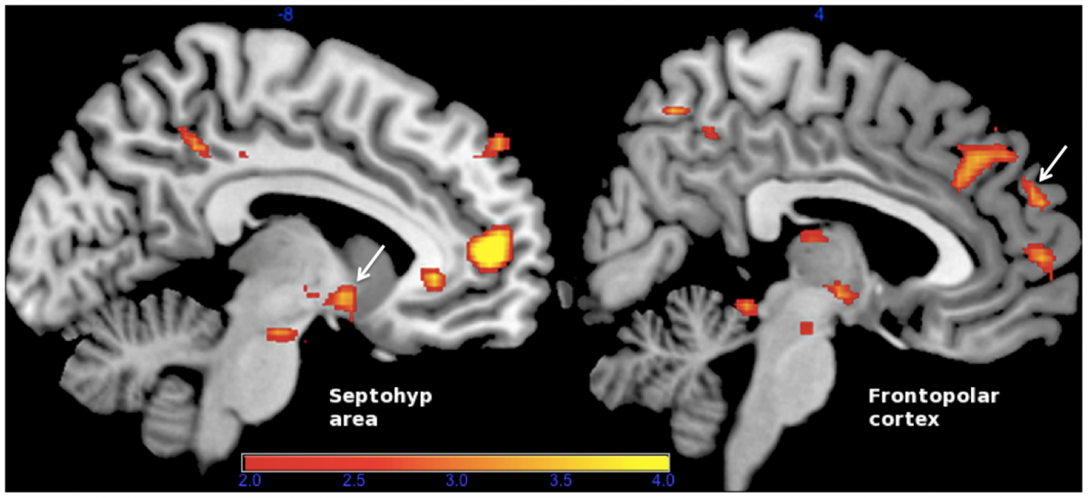 Comparison of tenderness/affection vs. pride during neurofeedback training