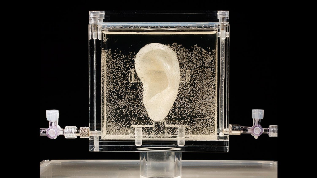 A bioprinted living replica of Vincent van Gogh's severed ear