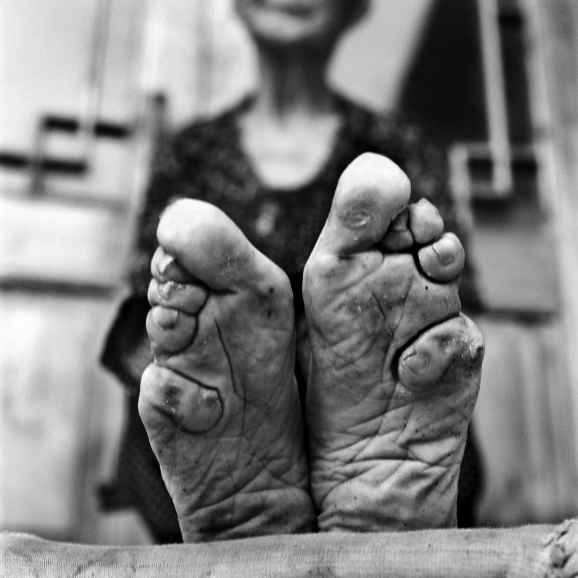 Foot binding 2