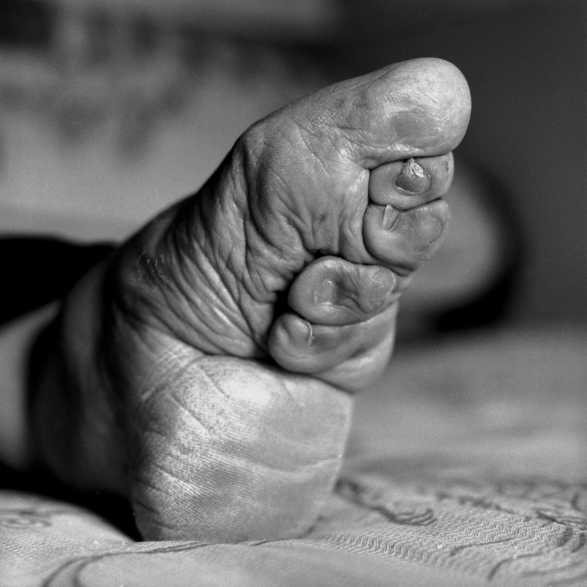 Foot binding 5