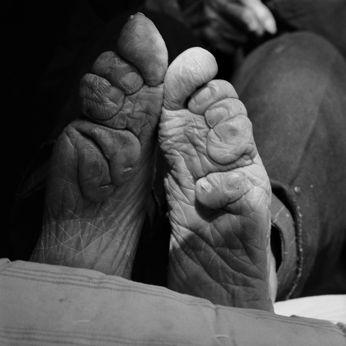 Foot binding 8