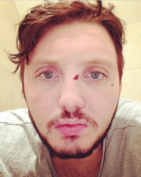 X Factor Winner James Arthur Beaten Up In Bar Brawl