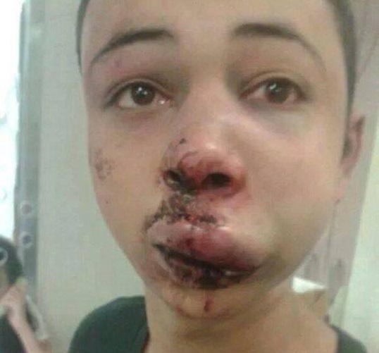 Tareq Abu Khadair, 15, was reportedly beaten up by Israeli security forces during clashes between police and Palestinian protesters.