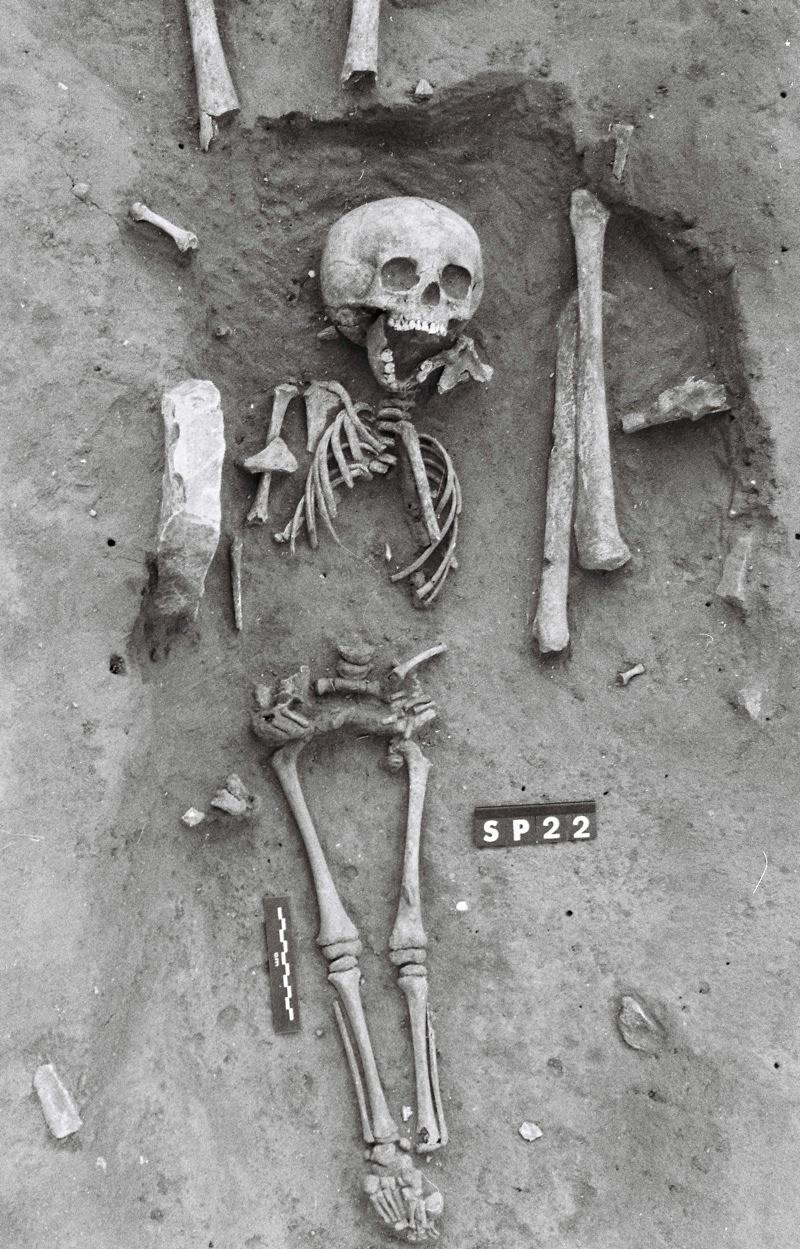 down's syndrome skeleton