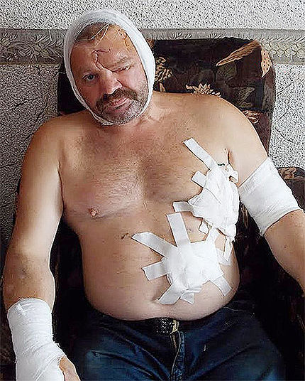 Igor Vorozhbitsyn injured by a Bear attack
