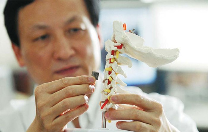 Liu Zhongjun, director of orthopaedics Peking University Third Hospital, holding a 3D-printed vertabra