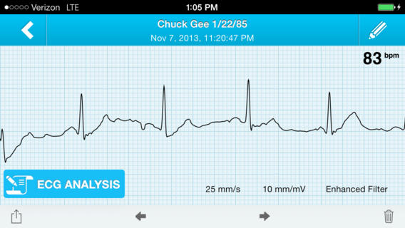 New Technology Approved by American FDA Converts Your Smartphones to Heart Monitors