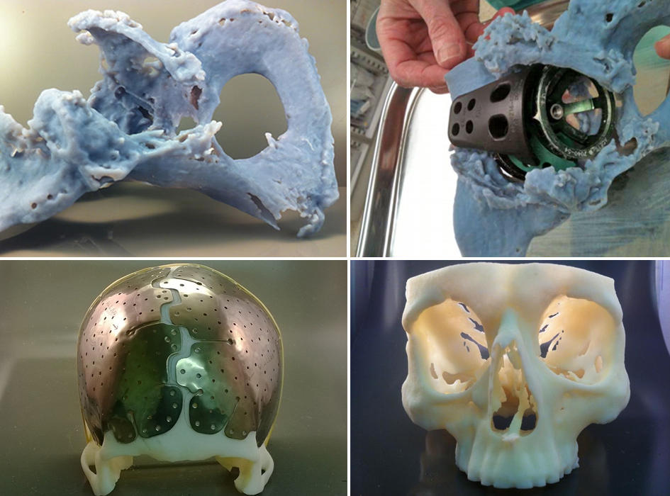 12 NHS Hospitals Using 3D-Printed Models To Test Implants Before Surgery
