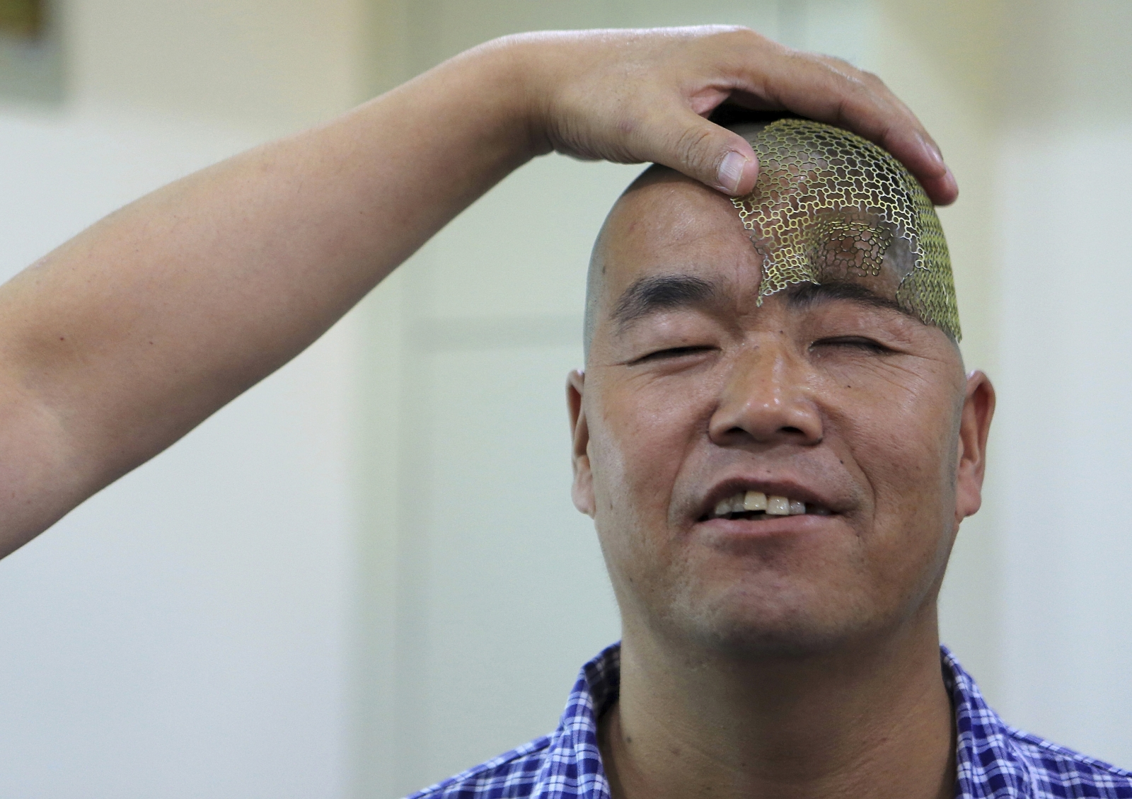 A Chinese man with only half a skull has undergone pioneering surgery to implant a titanium mesh into his head