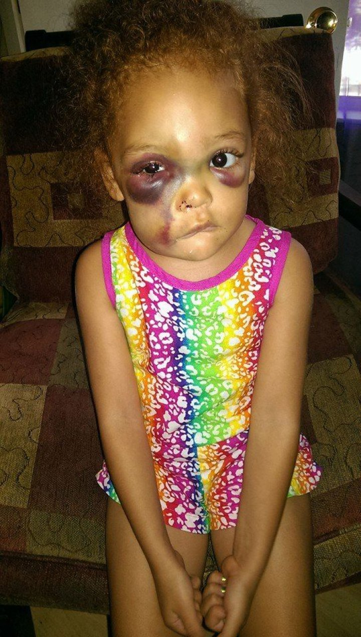 AvaLynn injuries