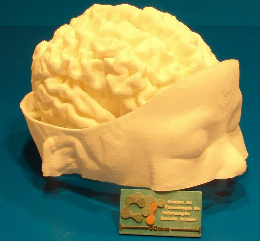 3D-printed model of an infant's brain