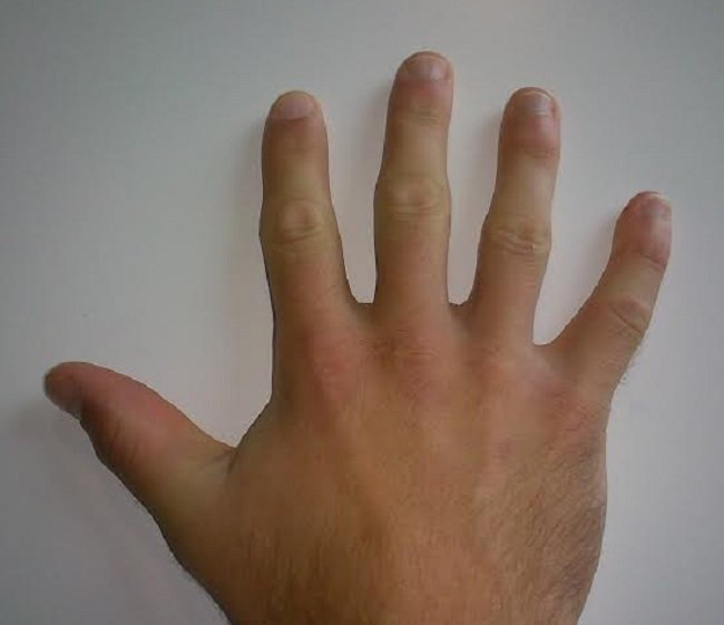 Longer ring finger linked to big testicles