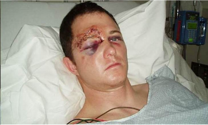 A fake image claiming to show injuries sustained by Ferguson Police officer Darren Wilson emerged online before being exposed as a hoax