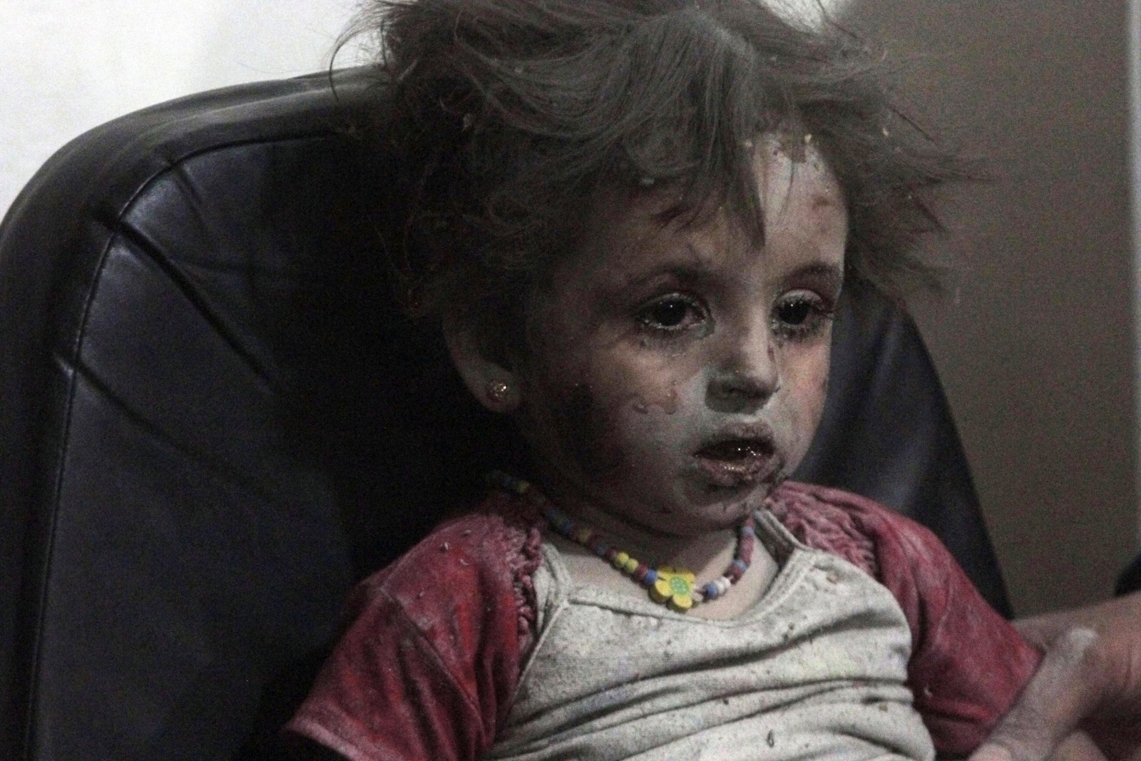 Injured Girl Child Syria Airstrike