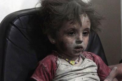 Injured Girl Child Syria Airstrike