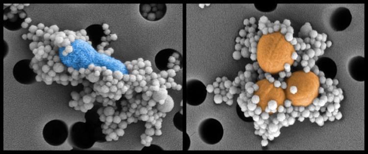 Magnetic nanobeads binding to pathogens