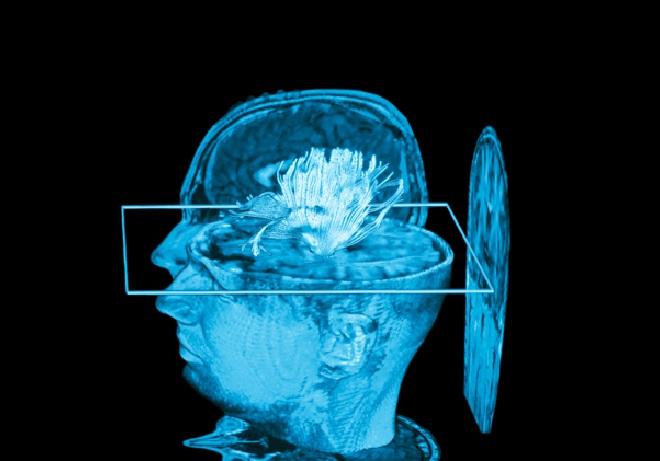 mind reading MRI
