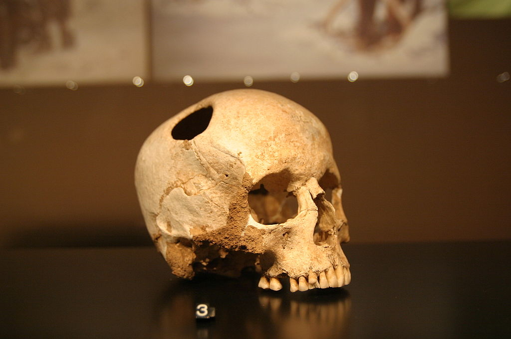 Trepanation - an ancient, highly risky head trauma treatment involving drilling or scraping a hole in the skull