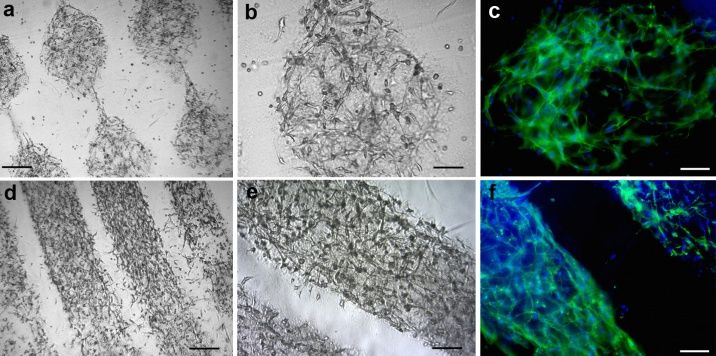 This image shows how the various keratinocytes and fibroblast cells look and how they look when they are bioprinted together