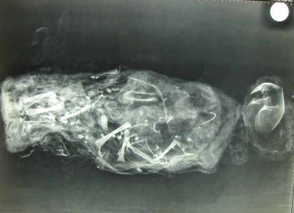 X-ray of mummified foetus