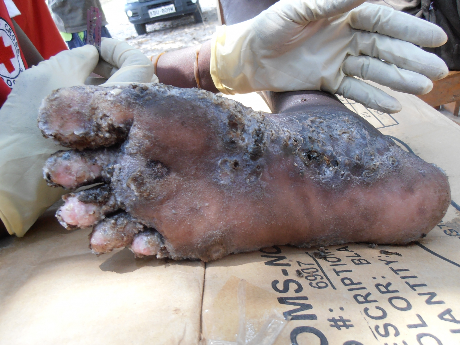 A foot infected with Tungiasis, an infestation of the skin by a burrowing cigoe or jigger flea