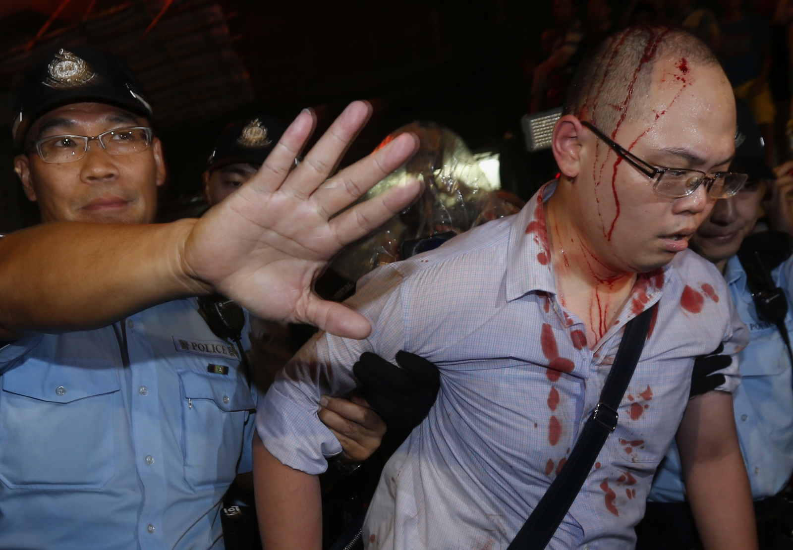 An injured pro-democracy protester is led away by police in Hong Kong