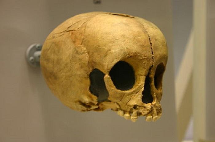 Child's skull