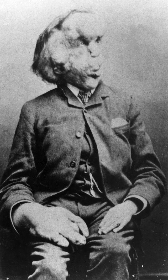 Joseph Merrick, whose stage name was the