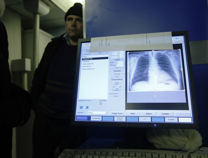 A patient's X-ray scan is shown on a computer after his screening for TB on board a mobile X-ray unit in London's Ladbroke Grove