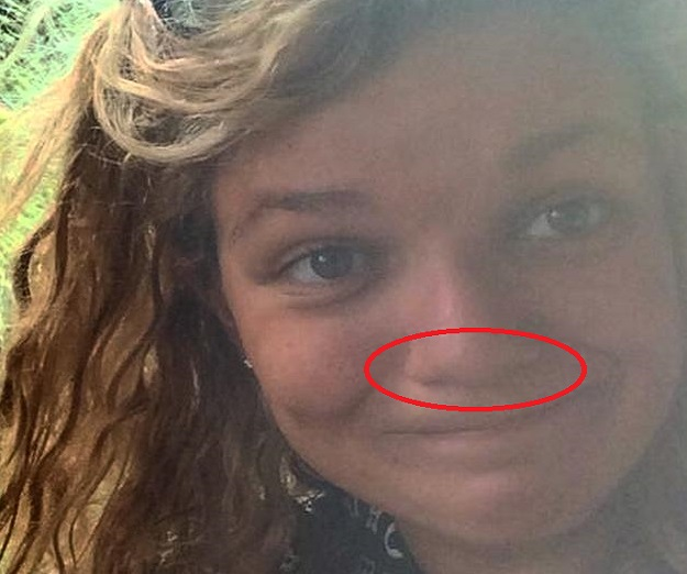 Daniela Liverani found a leech up her nose after returning from backpacking in south-east Asia
