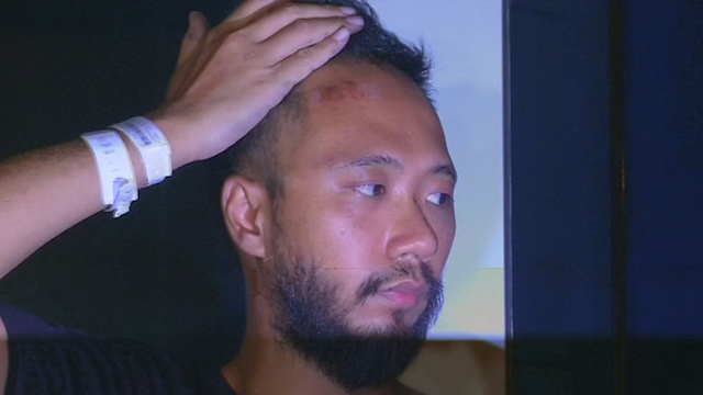 Protester Shows Evidence of Beating by Police in Hong Kong
