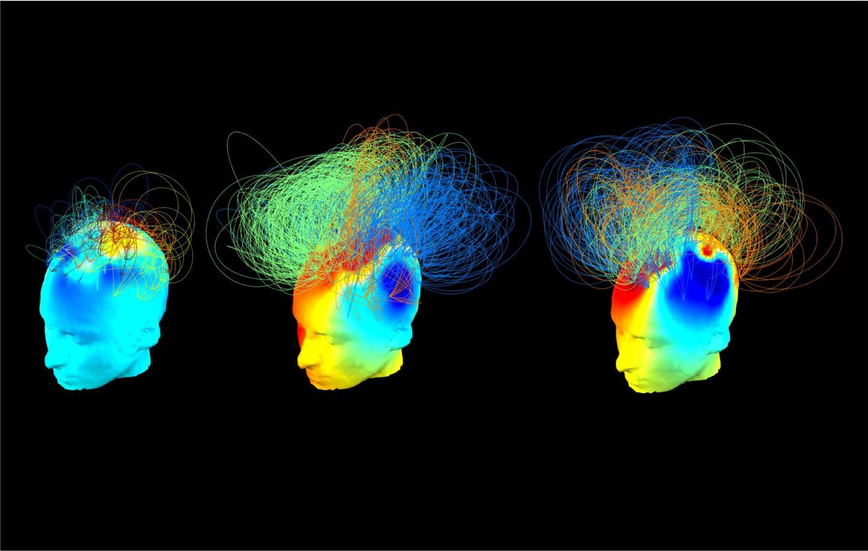 Brain activity scan