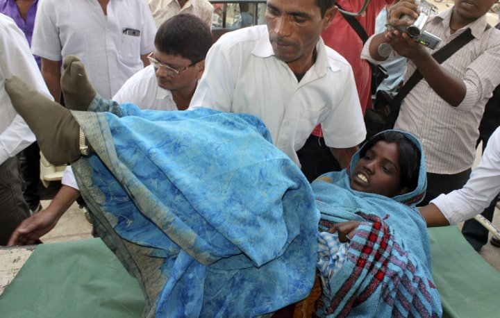 India sterilisation