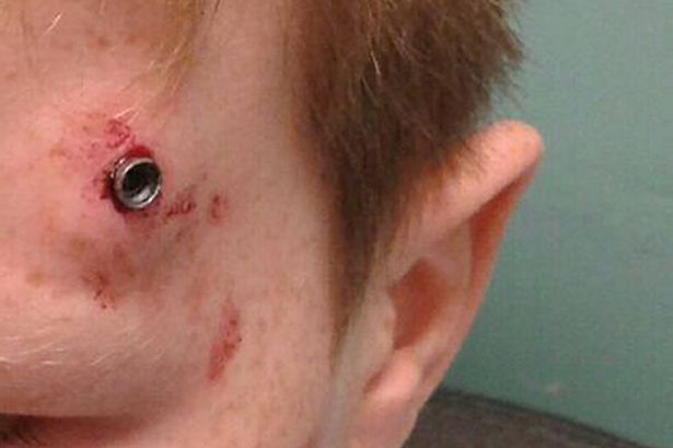 Horrific injury of Durham schoolboy shot with an airgun