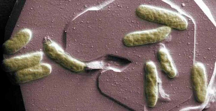 The Shewanella oneidensis bacteria - a type of bacteria that eats iron minerals and breathes out electricity
