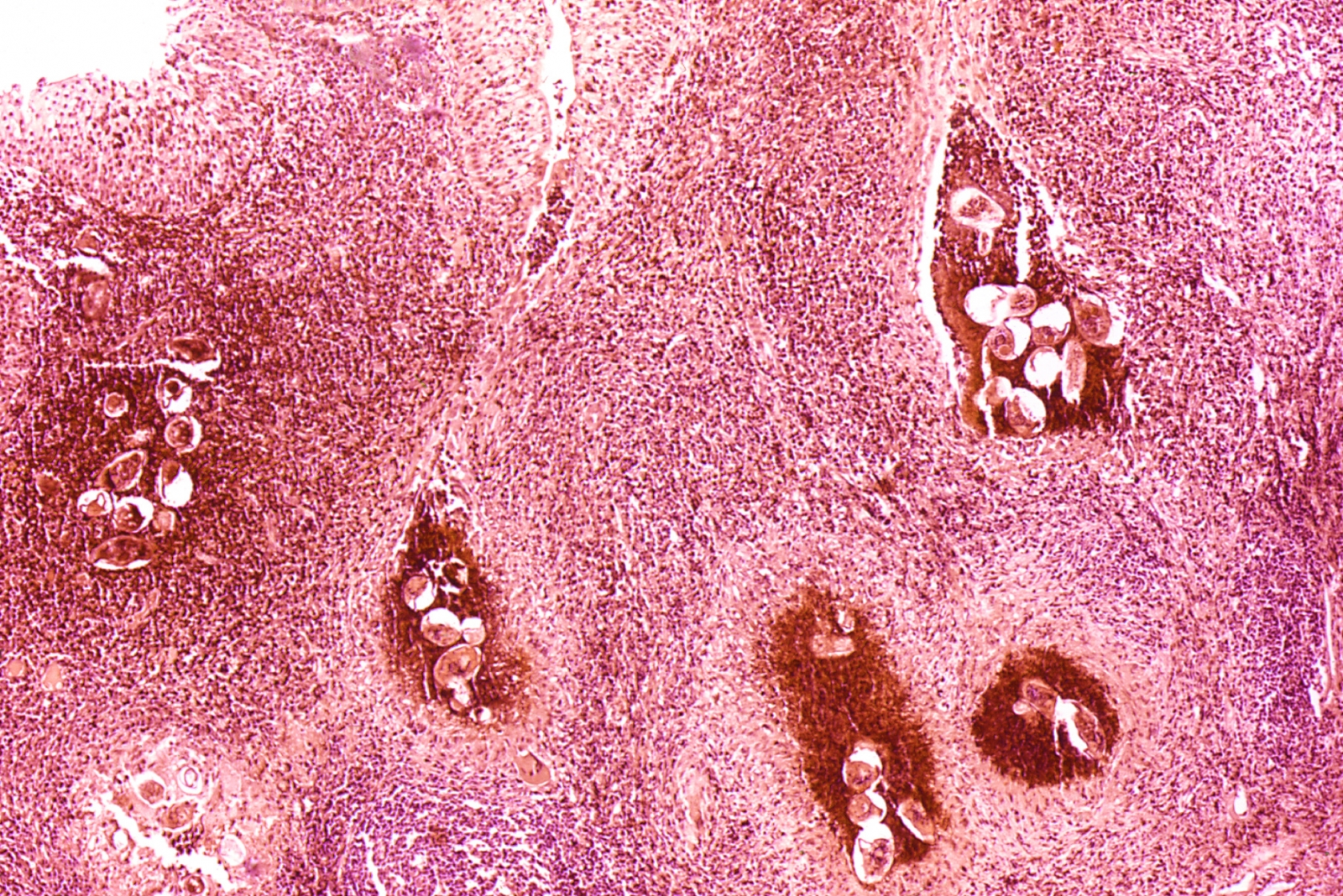 Bilharzia: photomicrography of infected bladder showing clusters of the parasite eggs