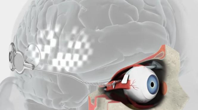 bionic eye 3d printed