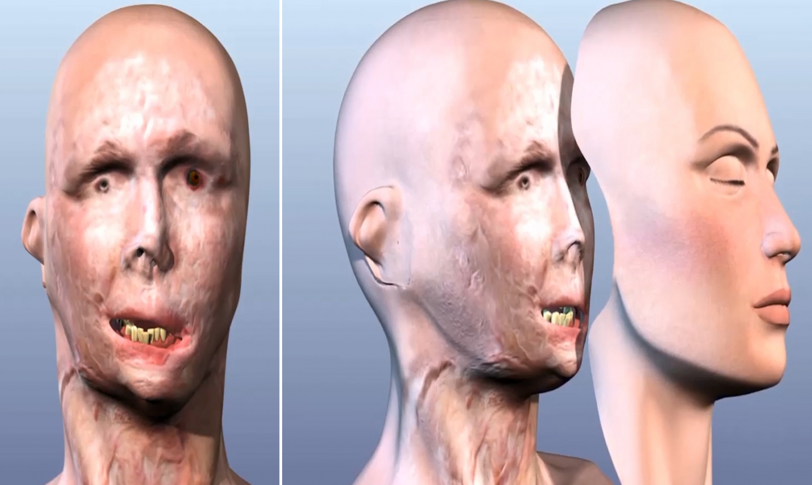 Full facial transplants: A new medical technique where a donor's face can be used to rebuild the faces of patients with horrific facial injuries