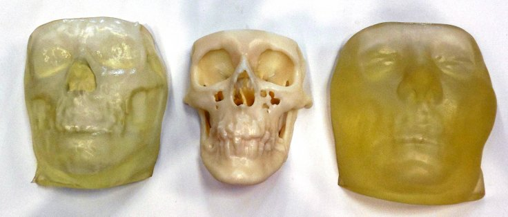 3D-printed face models of Carmen Tarleton: (from left), Tarleton's face and bone models prior to the surgery,
