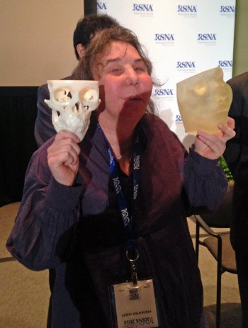 Carmen Tarleton today, showing the success of her full facial transplant at the RSNA conference