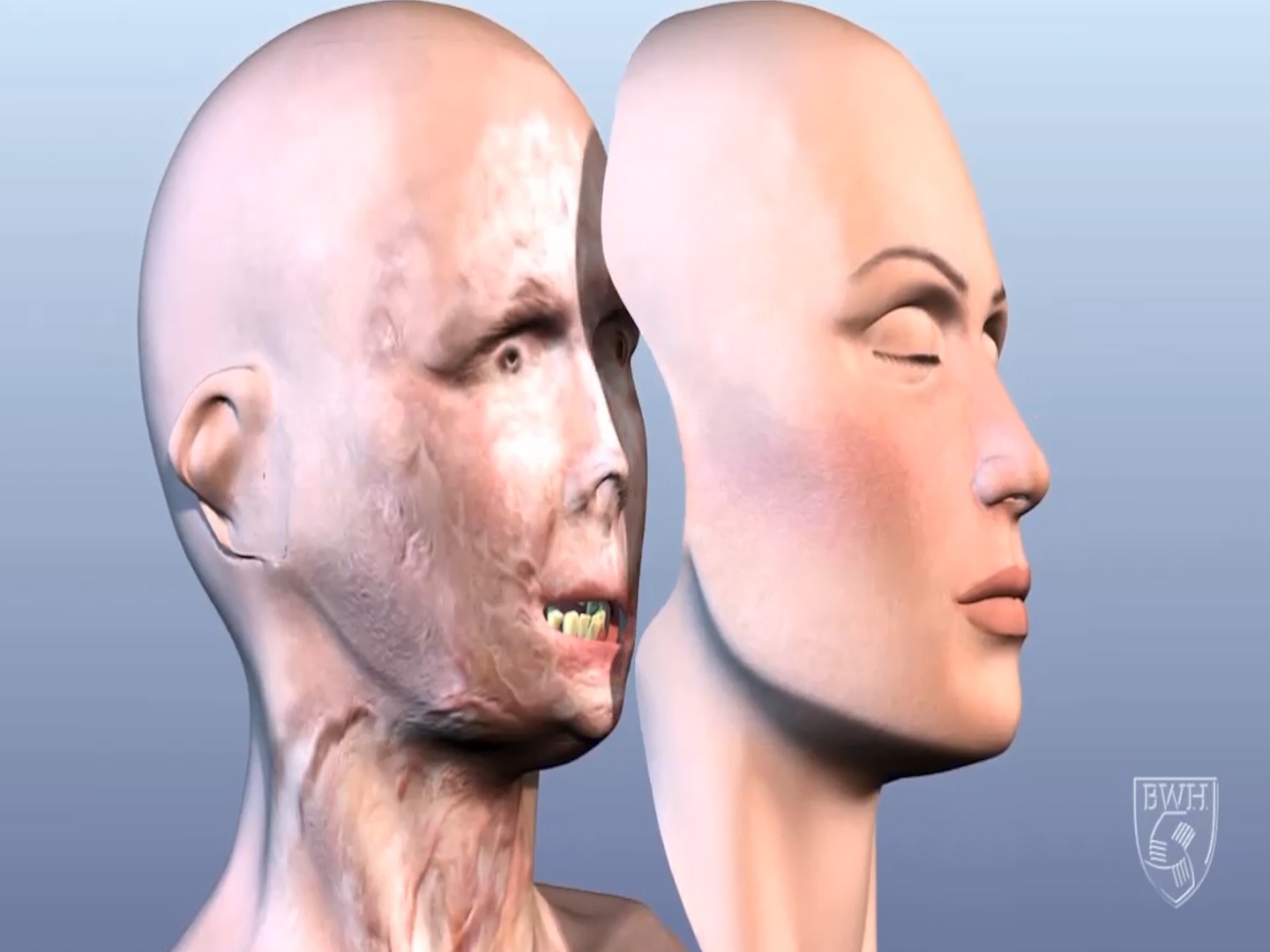 3D printing used in full face transplants