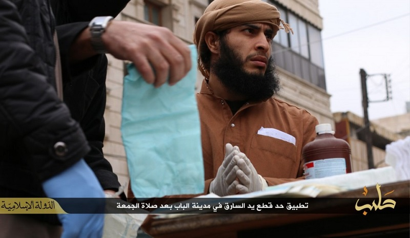 An Isis doctor is shown wearing while surgical gloves before he tends to the amputee