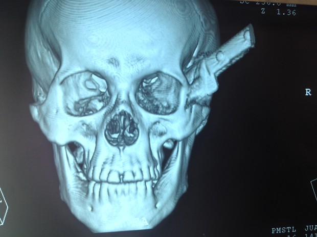 A Brazilian man has survived an attack that left a blade embedded in his skull